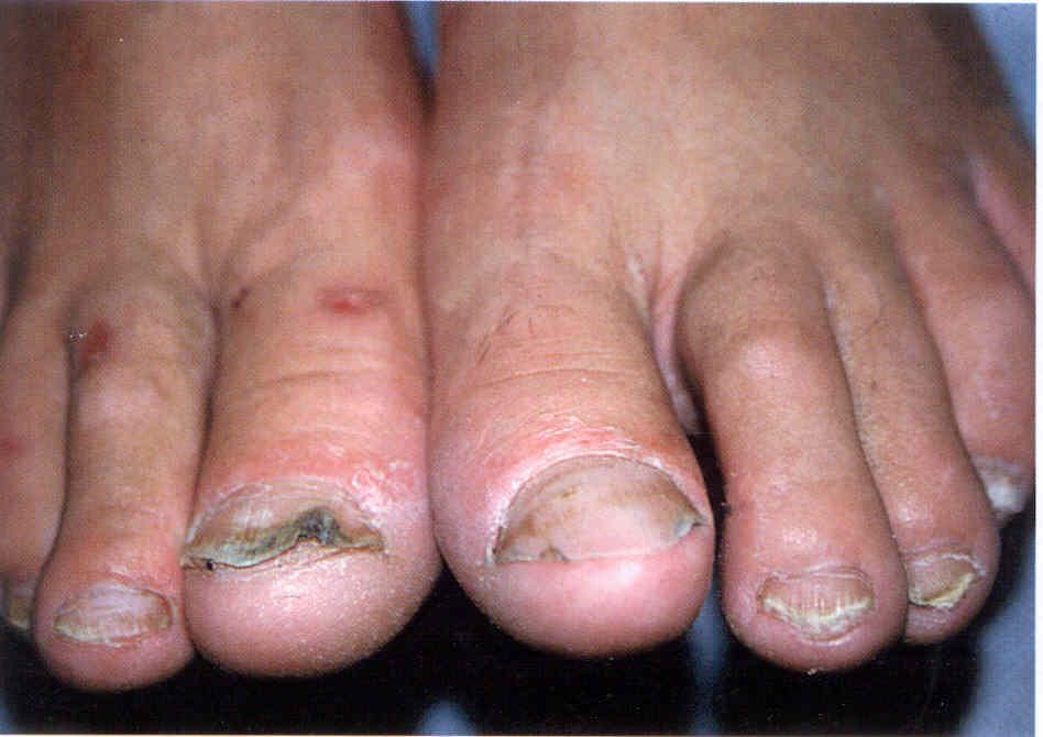Формы ногтей при различных заболеваниях. Изменения размера и внешнего 49