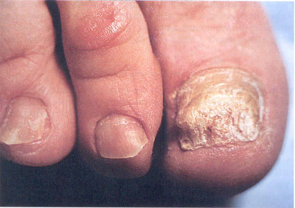 Новейшие противогрибковые препараты активно действуют на грибок и ... Крошение ногтя, то есть разрушение ногтевой...